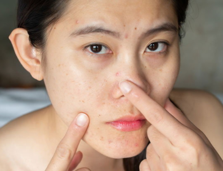 How to diagnose acne severity? and acne treatment