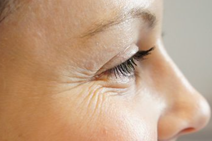 9 ways to cure crow's feet! How to fix eye wrinkles